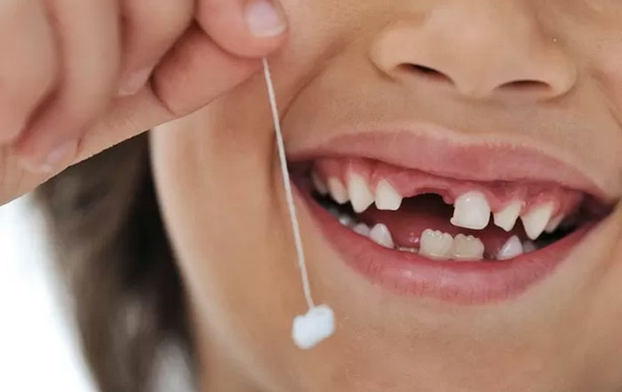 o dente de leite tem células tronco